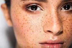 Laminary устраняет веснушки, пигментные пятна, отбеливает кожу