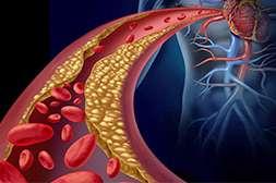 Лекарство Гипертон обеспечивает очищение сосудистых стенок