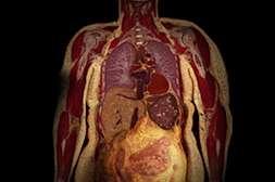 Средство Keto Power способствует очищению органов от жировых наслоений.