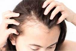 Princess Hair предотвращает выпадение.