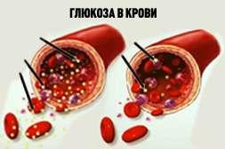Состав Диафаста снижает и регулирует уровень глюкозы.
