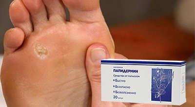 papidermin-ot-borodavok